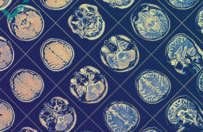 Die Nutzen eines mehrsprachigen Gehirns